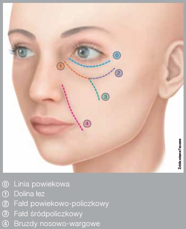 Podkrążone oko