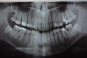 Implantologia – w ślad za naturą