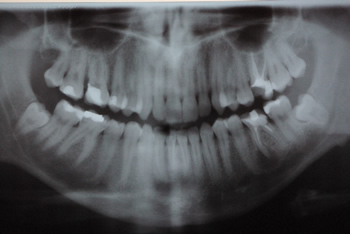 Wakacje bez problemów z zębami